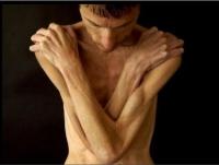 Анорексия теперь мужское заболевание
